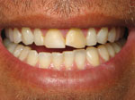 Dental Veneers for Teeth