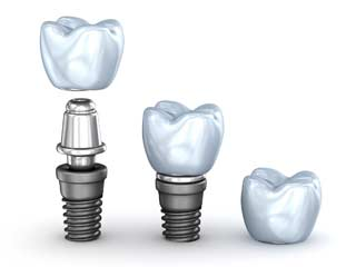 Dental Implants Huntsville AL